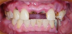 前歯2歯欠損をインプラント1.jpg