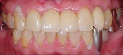 インプラントは残っている歯を保護する2.jpg