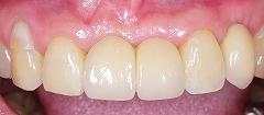 インプラントは残っている歯を保護する3.jpg