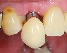 インプラントは残っている歯を保護する6.jpg