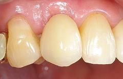 インプラントは残っている歯を保護する7.jpg