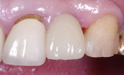 歯根破折をインプラントで修復4-4.jpg