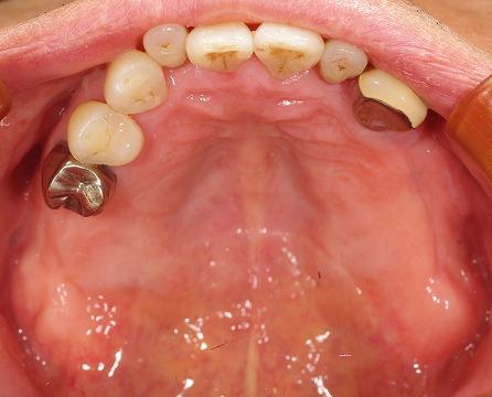 上顎義歯をインプラントに。2.jpg