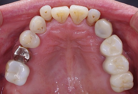 上顎義歯をインプラントに。3.jpg
