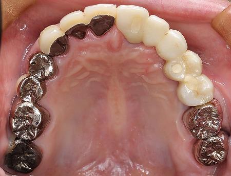 上顎義歯をインプラントに8.jpg