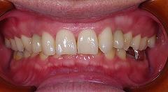 上顎犬歯欠損3.jpg