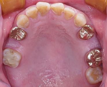 上顎第二小臼歯2本欠損・左第二大臼歯欠損.jpg
