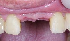 前歯2歯欠損をインプラント2.jpg