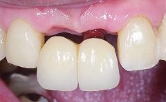 前歯2歯欠損をインプラント3.jpg