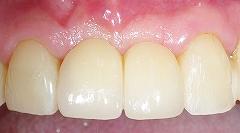 前歯2歯欠損をインプラント4.jpg
