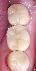 大臼歯2本欠損をインプラントで修復3.jpg