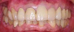 虫歯欠損咬合崩壊インプラント治療後正面.jpg