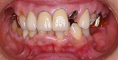虫歯欠損咬合崩壊インプラント治療前正面.jpg