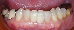 乳歯残存歯をインプラントに2.jpg