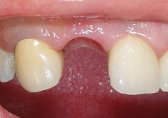 右上前歯インプラント1.jpg