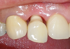右上前歯インプラント2.jpg