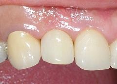 右上前歯インプラント3.jpg