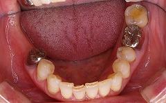 下顎大臼歯インプラント1.jpg