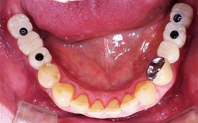 下顎両側スクリューインプラント2.jpg