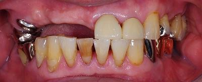 義歯からインプラントへ・左右差2.jpg