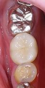 左下第一大臼歯インプラント3.jpg