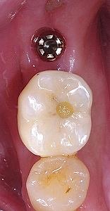 左下第二大臼歯インプラント、、1.jpg