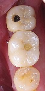 左下第二大臼歯インプラント、、2.jpg