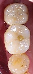 左下第二大臼歯インプラント、、3.jpg