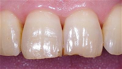 歯ぎしりによる前歯先端の破折5-2.jpg