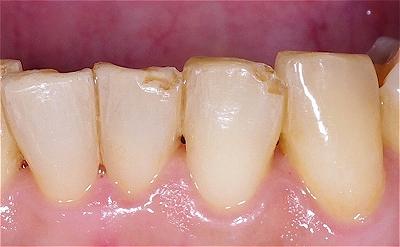 歯ぎしりによる前歯先端破折5-3.jpg