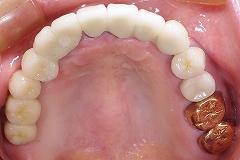 上義歯&インプラント4.jpg