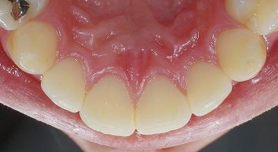 歯石除去希望で来院3.jpg