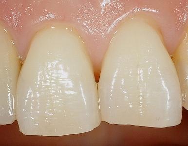 歯摩圧が強く歯肉退縮1.jpg