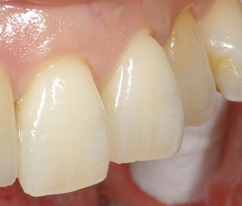 歯摩圧が強く歯肉退縮2.jpg