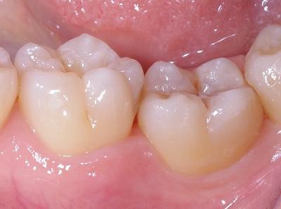歯列不正にはフロスで対処3.jpg