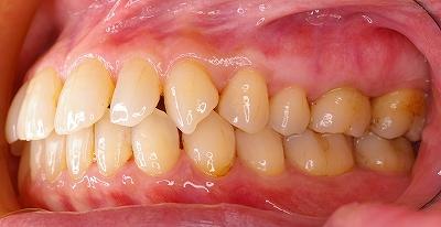上顎前歯のすき間は歯周病が原因2-右.jpg