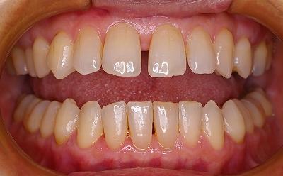上顎前歯のすき間は歯周病が原因2-開口.jpg