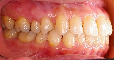 上顎前歯のすき間は歯周病が原因2-左.jpg