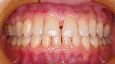 上顎前歯のすき間は歯周病が原因2-正面.jpg