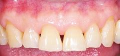 65才の歯ぐき1.jpg