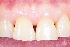 65才の歯ぐき2.jpg