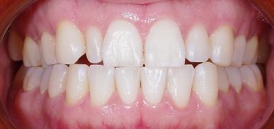 咬み合わせによる前歯の磨耗その5ー1.jpg