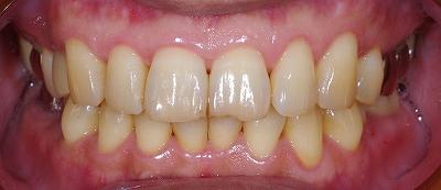 咬合による前歯の磨耗その4-1.jpg