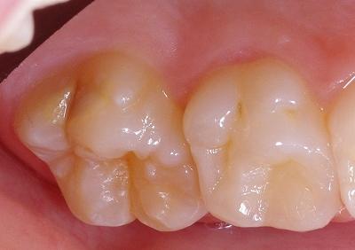 エナメル質形成不全第一大臼歯側面1.jpg