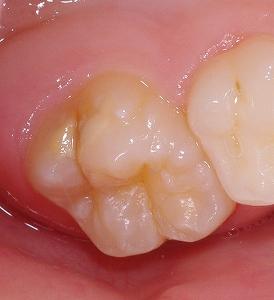 エナメル質形成不全第一大臼歯側面2.jpg
