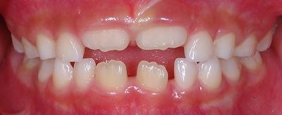 永久歯の萌出時期正面.jpg