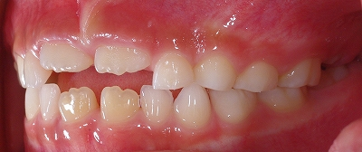 永久歯の萌出時期側面.jpg