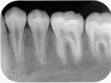 下顎奥歯レントゲン写真.jpg