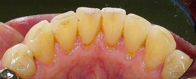 下顎前歯の磨り減り70歳1.jpg