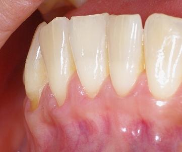 下顎前歯フェストーン1.jpg